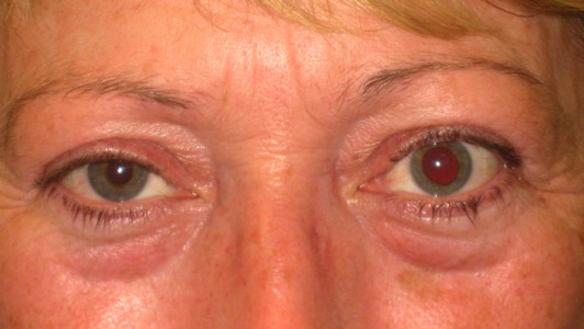 Complex simultaneous eyelid elevation and lower surgery